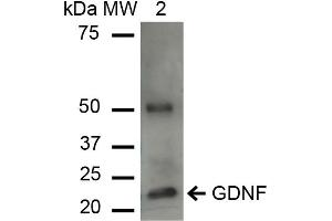 Image no. 2 for anti-Glial Cell Line Derived Neurotrophic Factor (GDNF) antibody (Alkaline Phosphatase (AP)) (ABIN5066758)