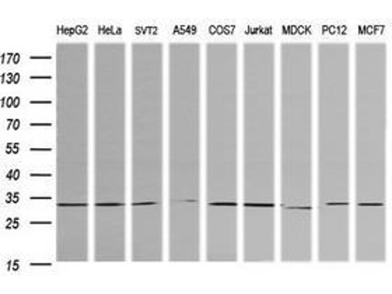 image for anti-Retinoic Acid Receptor Responder (Tazarotene Induced) 1 (RARRES1) antibody (ABIN1500602)