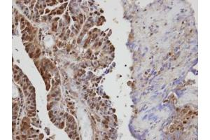 Immunohistochemistry (Paraffin-embedded Sections) (IHC (p)) image for anti-VAV1 antibody (Vav 1 Oncogene) (Center) (ABIN441430)