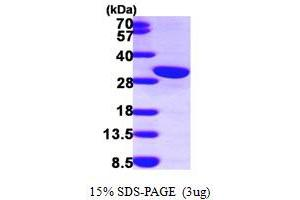 Image no. 1 for Calbindin 2 (CALB2) (AA 1-271) protein (His tag) (ABIN667199)