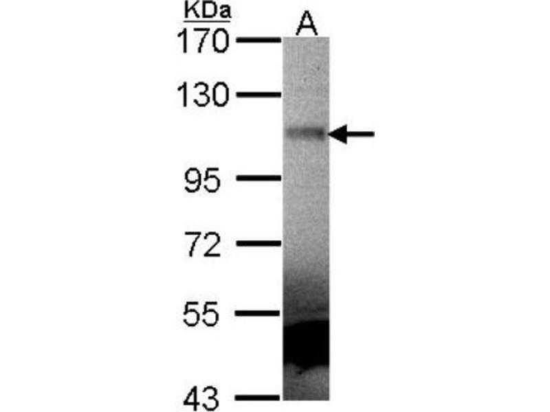 Western Blotting (WB) image for anti-MUSK antibody (Muscle, Skeletal, Receptor Tyrosine Kinase) (ABIN4336819)