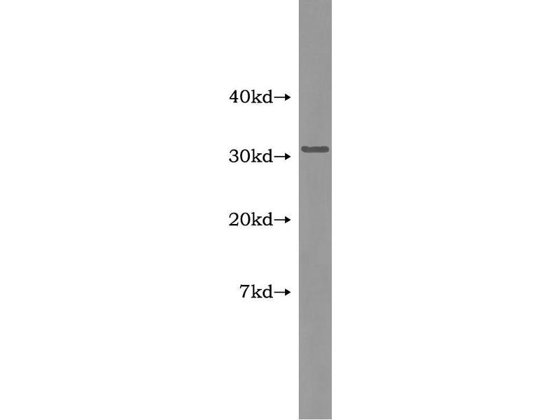 Tumor Necrosis Factor (Ligand) Superfamily, Member 13b (TNFSF13B) ELISA Kit (4)