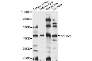 Image no. 1 for anti-Zinc Finger Protein 621 (ZNF621) antibody (ABIN6291114)