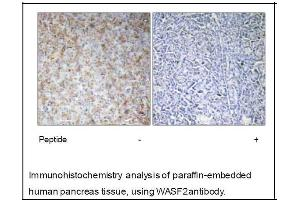 Immunohistochemistry (IHC) image for anti-WASF2 antibody (WAS Protein Family, Member 2) (Internal Region) (ABIN2501176)