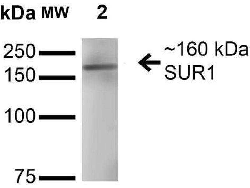 Western Blotting (WB) image for anti-ATP-Binding Cassette, Sub-Family C (CFTR/MRP), Member 8 (ABCC8) (AA 1548-1582) antibody (ABIN1027723)