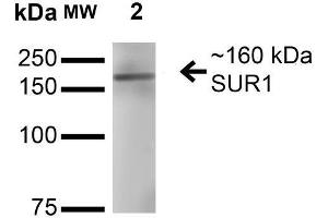 Western Blotting (WB) image for anti-ATP-Binding Cassette, Sub-Family C (CFTR/MRP), Member 8 (ABCC8) (AA 1548-1582), (C-Term) antibody (ABIN1027723)