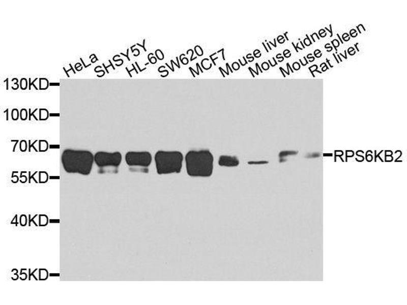 Western Blotting (WB) image for anti-Ribosomal Protein S6 Kinase, 70kDa, Polypeptide 2 (RPS6KB2) (pSer6) antibody (ABIN5663936)