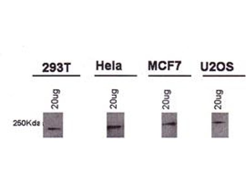 Western Blotting (WB) image for anti-BRCA1 antibody (Breast Cancer 1) (AA 1314-1864) (ABIN152030)