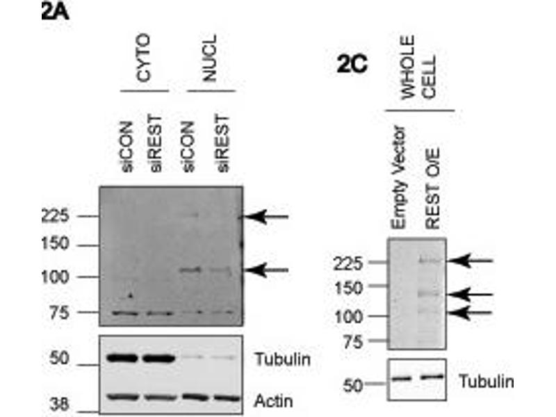 Western Blotting (WB) image for anti-RE1-Silencing Transcription Factor (REST) (Middle Region) antibody (ABIN2779670)