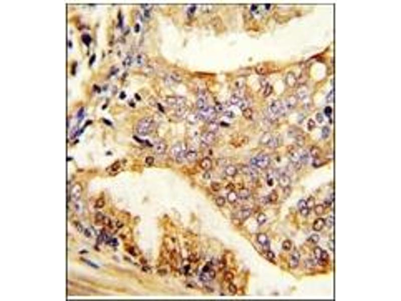 image for anti-Pumilio Homolog 2 (Drosophila) (PUM2) (Ser182) antibody (ABIN360017)
