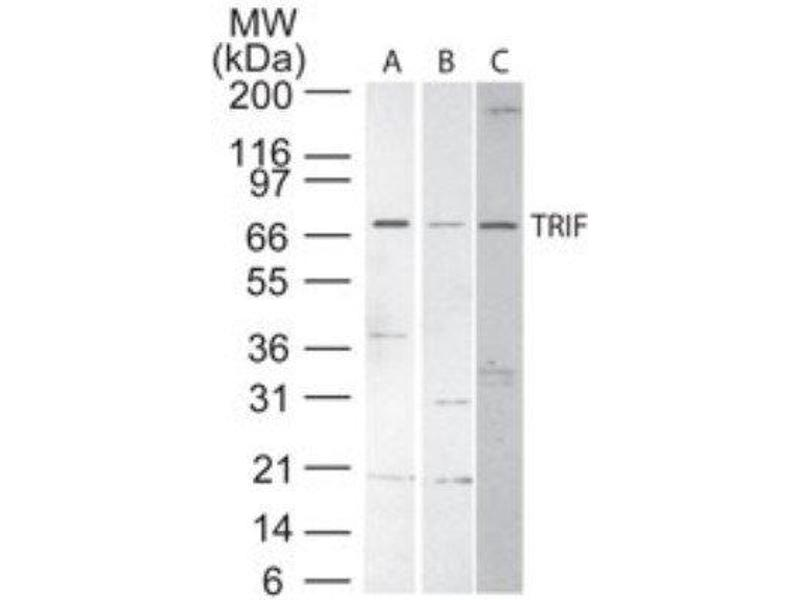 Western Blotting (WB) image for anti-Toll-Like Receptor Adaptor Molecule 1 (TICAM1) (Internal Region) antibody (ABIN266066)
