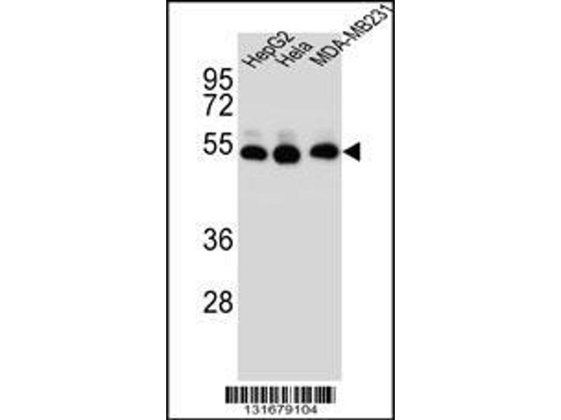 Western Blotting (WB) image for anti-TUBB2B antibody (Tubulin, beta 2B) (N-Term) (ABIN2498118)
