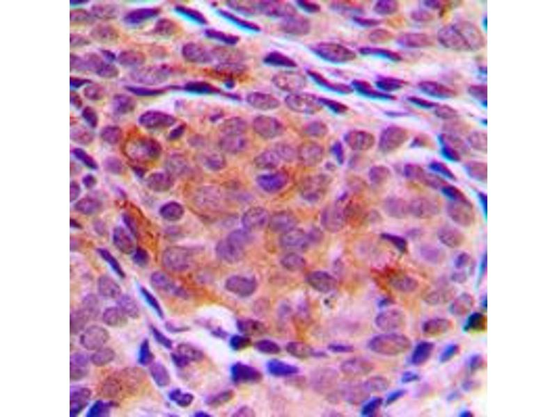 Immunohistochemistry (IHC) image for anti-Tumor Protein, Translationally-Controlled 1 (TPT1) (Center) antibody (ABIN2707157)