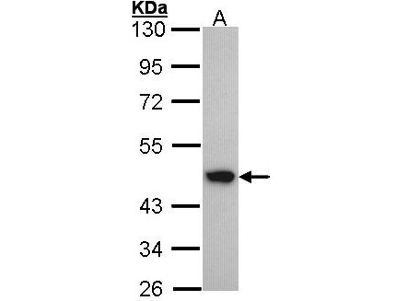 Western Blotting (WB) image for anti-Acyl-CoA Dehydrogenase, C-4 To C-12 Straight Chain (ACADM) (AA 1-93) antibody (ABIN550859)