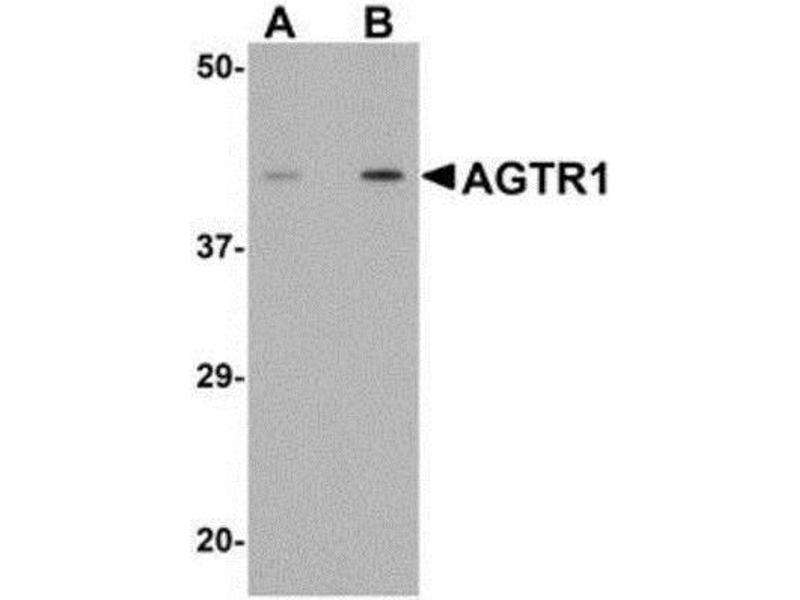 Western Blotting (WB) image for anti-Angiotensin II Type-1 Receptor antibody (Angiotensin II Receptor, Type 1) (Center) (ABIN4278728)