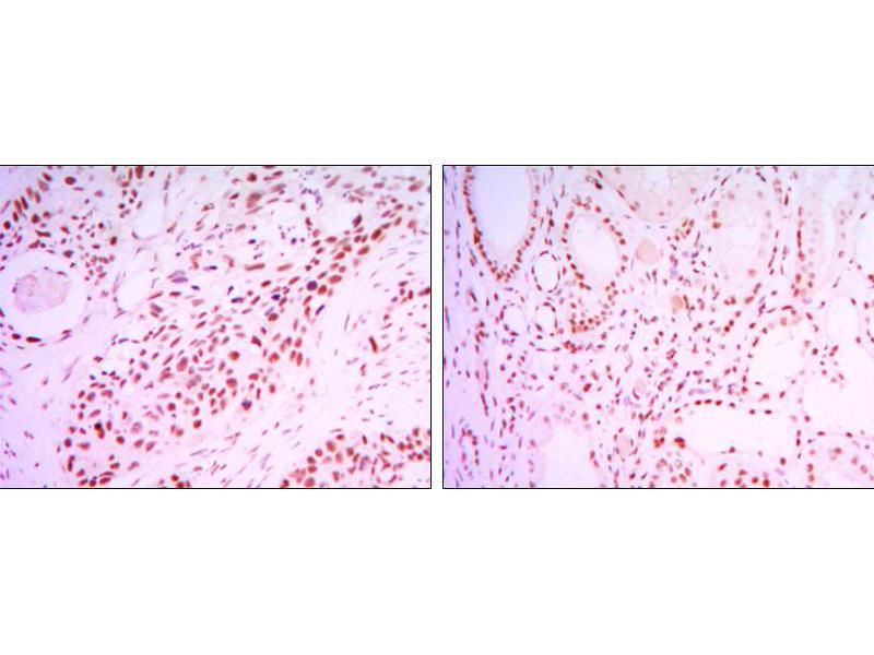 Immunohistochemistry (IHC) image for anti-Sirtuin 1 (SIRT1) antibody (ABIN969396)