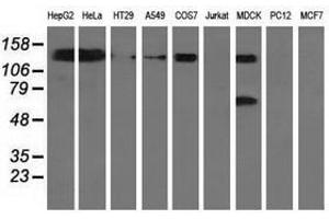 Image no. 2 for anti-L1 Cell Adhesion Molecule (L1CAM) antibody (ABIN1499086)