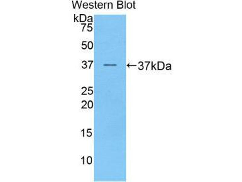Western Blotting (WB) image for anti-Preferentially Expressed Antigen in Melanoma (PRAME) (AA 416-502) antibody (ABIN1860297)