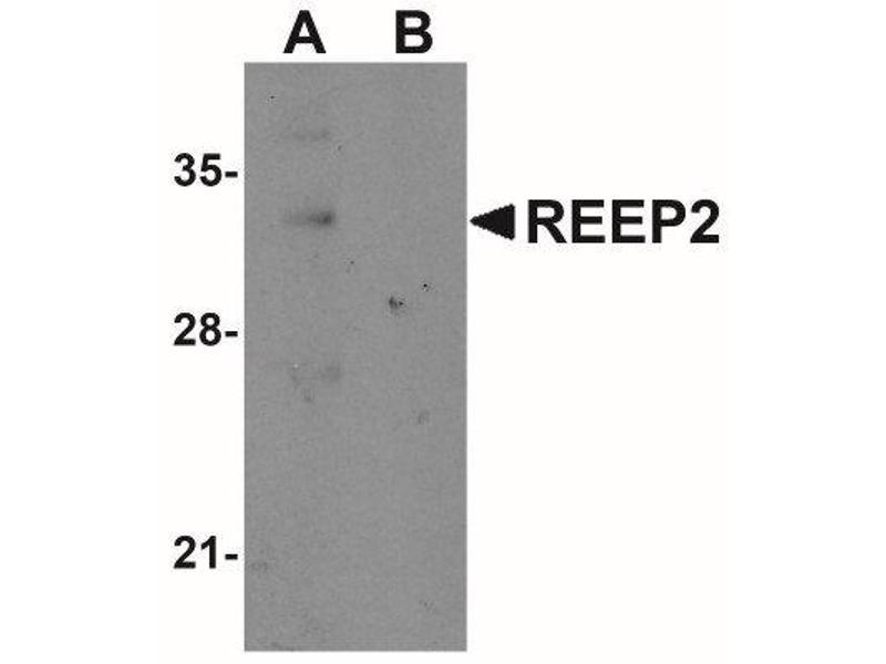 Western Blotting (WB) image for anti-Receptor Accessory Protein 2 (REEP2) (Center) antibody (ABIN4349807)
