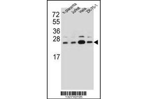 Image no. 1 for anti-Signal Sequence Receptor, beta (Translocon-Associated Protein Beta) (SSR2) (AA 154-183), (C-Term) antibody (ABIN5537560)