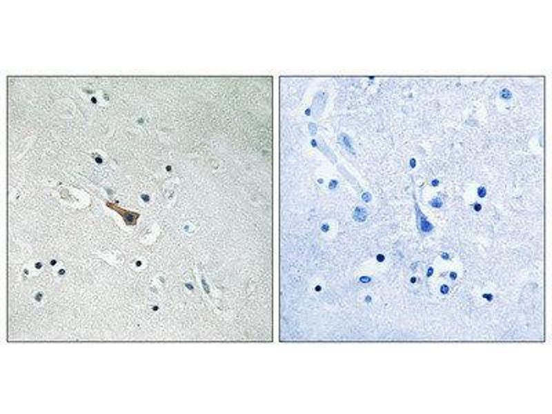 Immunohistochemistry (IHC) image for anti-Amyloid beta (A4) Precursor-Like Protein 2 (APLP2) (pTyr755) antibody (ABIN1847734)