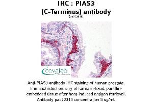 Image no. 1 for anti-Protein Inhibitor of Activated STAT, 3 (PIAS3) (C-Term) antibody (ABIN1738082)