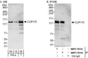 Western Blotting (WB) image for anti-CLIP2 antibody (CAP-GLY Domain Containing Linker Protein 2) (AA 996-1046) (ABIN4301706)