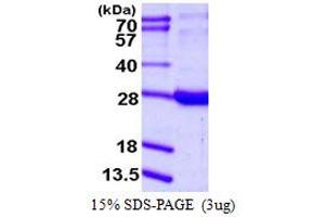 Image no. 1 for Retinol Binding Protein 1, Cellular (RBP1) (AA 1-197) protein (His tag) (ABIN667614)