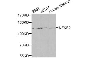 Image no. 5 for anti-Nuclear Factor of kappa Light Polypeptide Gene Enhancer in B-Cells 2 (NFKB2) antibody (ABIN3017388)