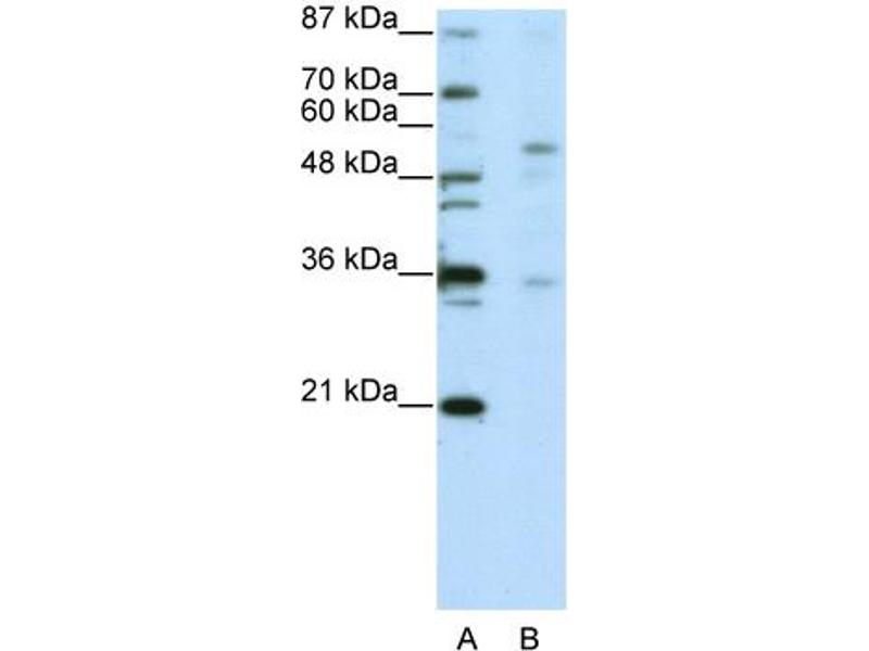 Western Blotting (WB) image for anti-Zinc Finger Protein 57 (ZFP57) (C-Term) antibody (ABIN183867)