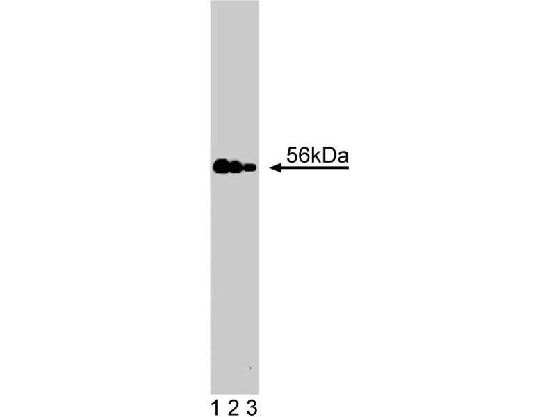 Western Blotting (WB) image for anti-Macrophage Stimulating 1 (Hepatocyte Growth Factor-Like) (MST1) (AA 331-483) antibody (ABIN968344)