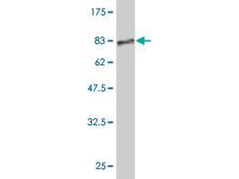 Western Blotting (WB) image for anti-Keratin 18 (KRT18) (AA 1-431) antibody (ABIN395211)