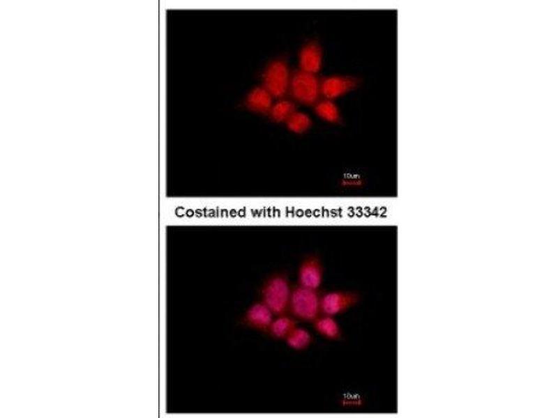 Immunofluorescence (IF) image for anti-NCK Adaptor Protein 1 (NCK1) (Center) antibody (ABIN4338265)