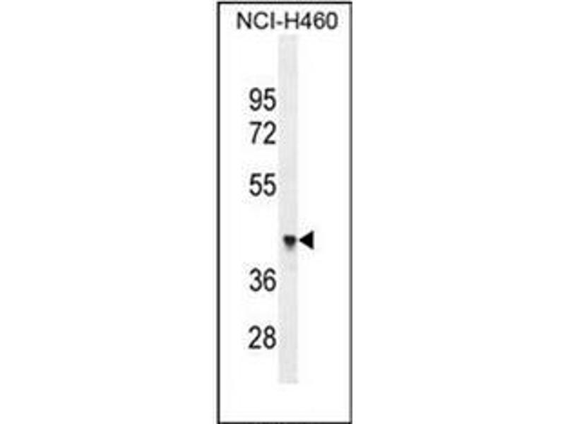 Western Blotting (WB) image for anti-Forkhead Box D4-Like 1 (FOXD4L1) (AA 1-30), (N-Term) antibody (ABIN952365)