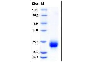 Image no. 1 for R-Spondin 1 (RSPO1) (AA 1-146) (Active) protein (His tag) (ABIN2003936)