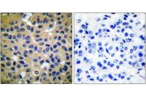 Image no. 3 for anti-Collagen, Type II (COL2) (AA 101-150) antibody (ABIN1533237)