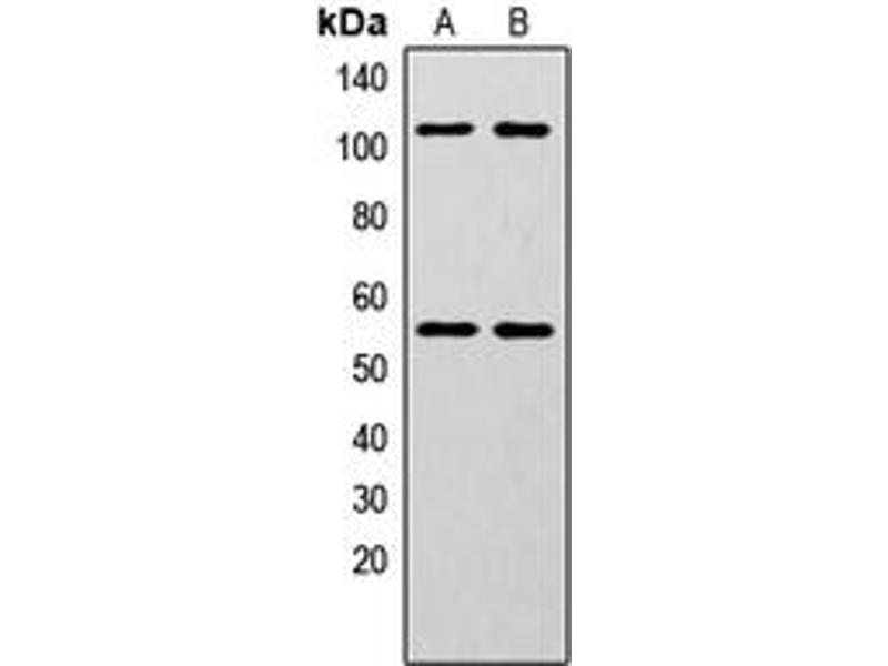 Western Blotting (WB) image for anti-Nuclear Factor of kappa Light Polypeptide Gene Enhancer in B-Cells 1 (NFKB1) (pSer337) antibody (ABIN2706675)