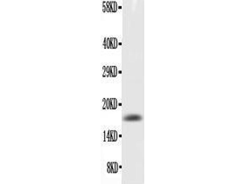 Western Blotting (WB) image for anti-CSF2 antibody (Colony Stimulating Factor 2 (Granulocyte-Macrophage)) (AA 18-141) (ABIN3042527)