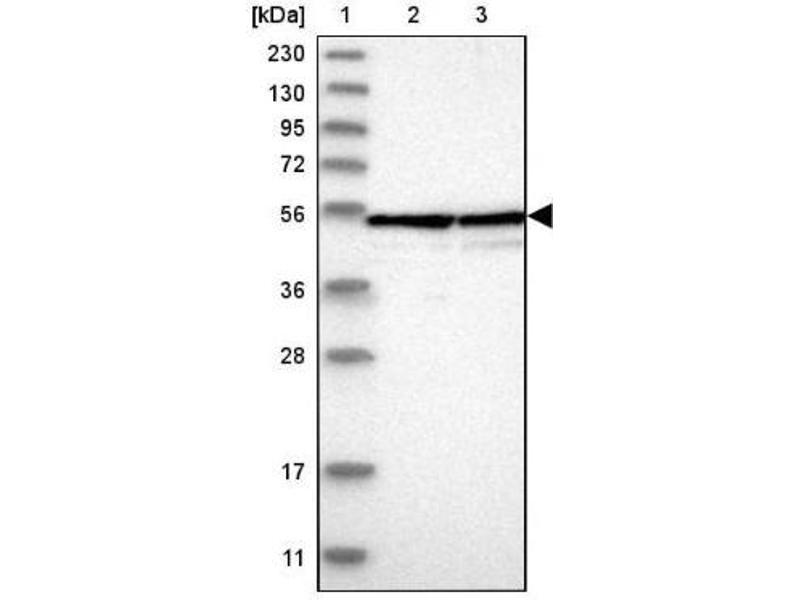 Western Blotting (WB) image for anti-Bystin-Like (BYSL) antibody (ABIN4285613)