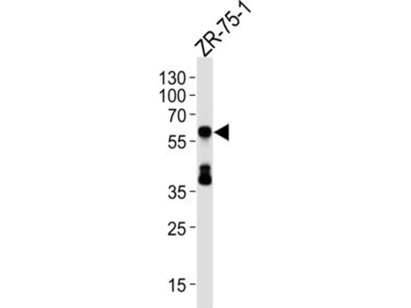 Western Blotting (WB) image for anti-delta Like Protein 3 (DLL3) antibody (ABIN3004134)
