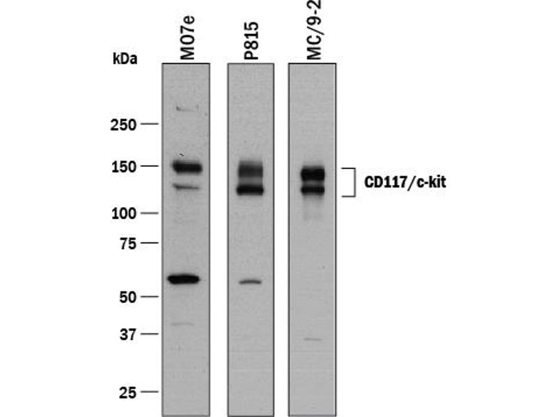 Western Blotting (WB) image for anti-Mast/stem Cell Growth Factor Receptor (KIT) (AA 25-519), (Ala207Glu-Mutant) antibody (ABIN4899910)