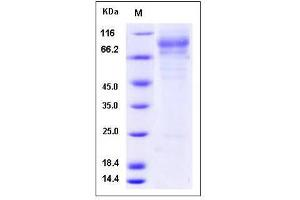 image for Iduronate 2-Sulfatase (IDS) (AA 1-550) (Active) protein (His tag) (ABIN2002610)