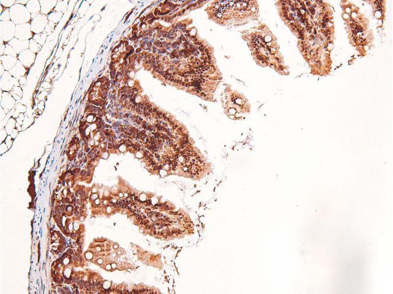 Immunohistochemistry (IHC) image for anti-Protein Kinase C, delta (PKCd) (pSer664) antibody (ABIN6271530)