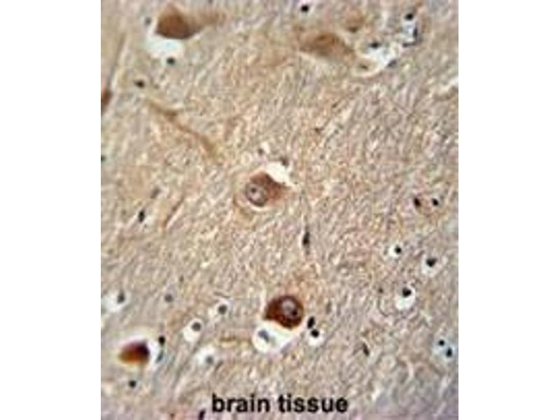Immunohistochemistry (Paraffin-embedded Sections) (IHC (p)) image for anti-Clusterin (CLU) (AA 71-99), (N-Term) antibody (ABIN950467)