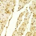 Immunohistochemistry of paraffin-embedded Human esophageal using MSH2 antibody at dilution of 1:100 (x400 lens).