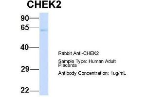 Western Blotting (WB) image for anti-Checkpoint Kinase 2 (CHEK2) (N-Term) antibody (ABIN2779326)