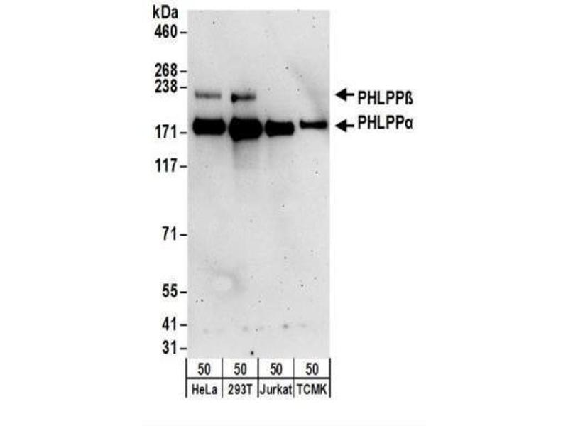 Western Blotting (WB) image for anti-PH Domain and Leucine Rich Repeat Protein Phosphatase 1 (PHLPP1) antibody (ABIN4345253)
