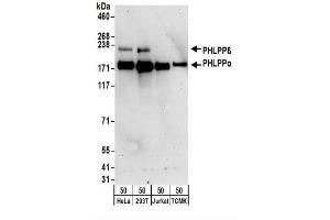 Western Blotting (WB) image for anti-PHLPP1 antibody (PH Domain and Leucine Rich Repeat Protein Phosphatase 1) (ABIN4345253)