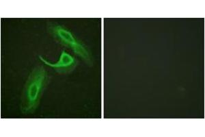 Immunofluorescence (IF) image for anti-Integrin beta 2 (ITGB2) (AA 720-769) antibody (ABIN1532556)