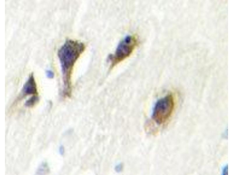 Immunohistochemistry (IHC) image for anti-MAPK10 antibody (Mitogen-Activated Protein Kinase 10) (Lys391) (ABIN446845)